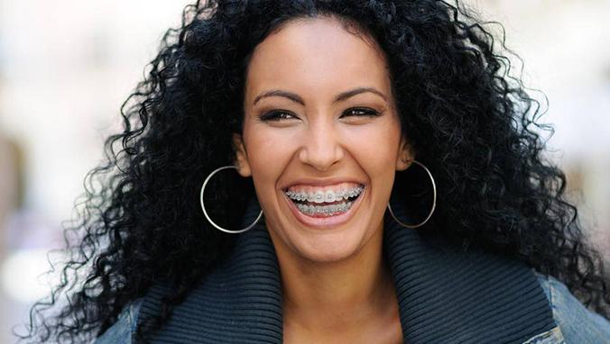 常见的牙齿畸形矫正误区